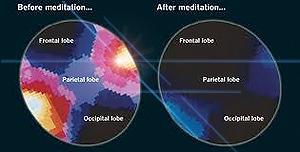 Brainscan shows meditation benefits